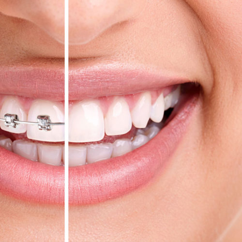 L'ortodonzia invisibile