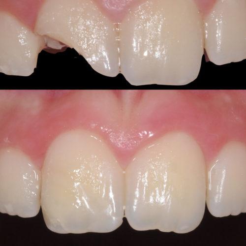 L'Odontoiatria Conservativa Estetica