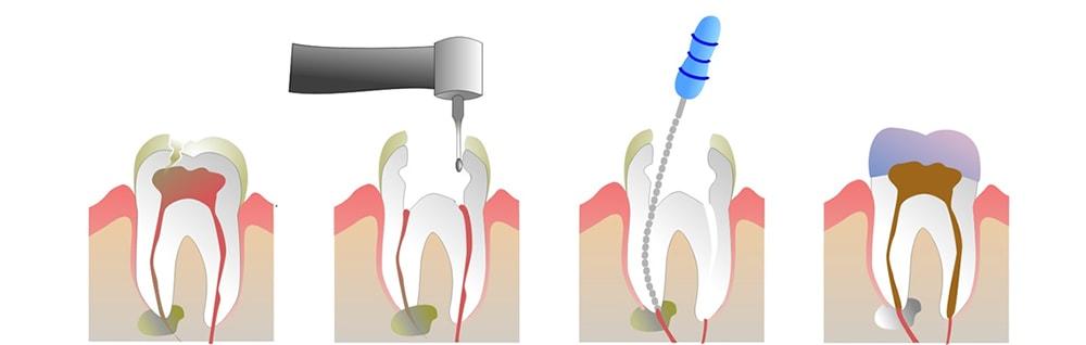 Endodonzia lecce devitalizzazione dente