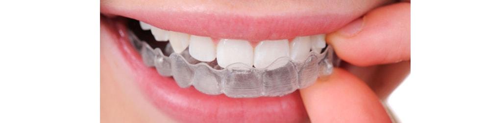 bite dentale lecce gnatologia