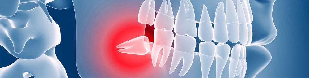 chirurgia orale lecce dente del giudizio dentista lecce