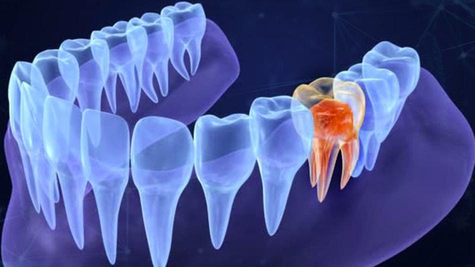 endodonzia lecce