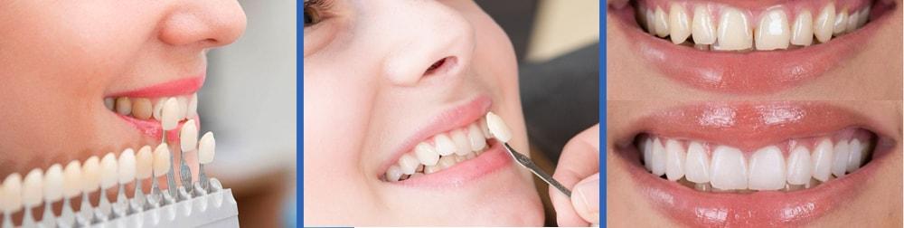 faccette dentali lecce dentista