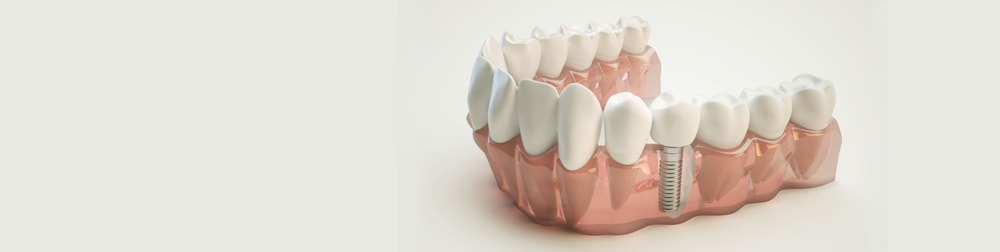 impianti denti lecce ponti