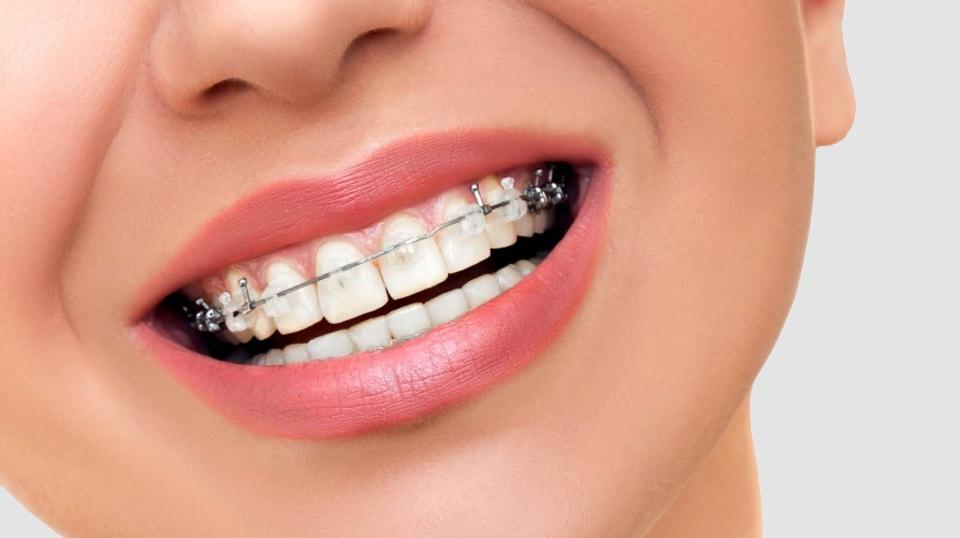 ortodonzia lecce