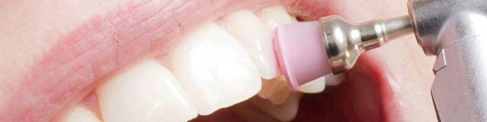 tartaro placca dentista lecce