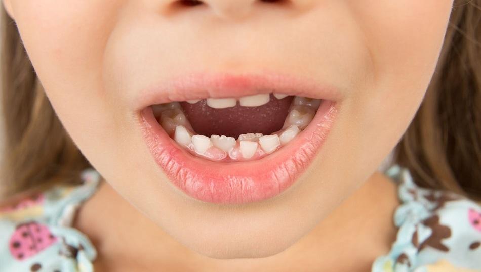 denti-da-latte-cariati