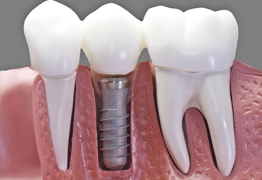 impianto dentale Lecce