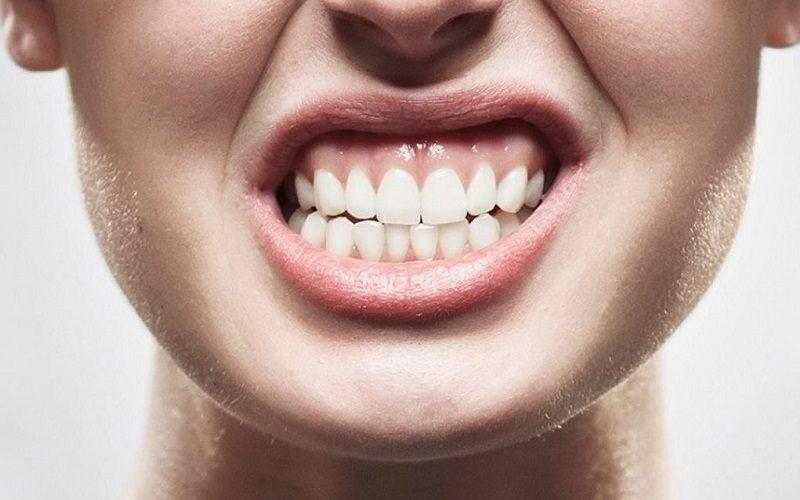 Malocclusione dentale: sintomi e pericoli di un disturbo trattabile