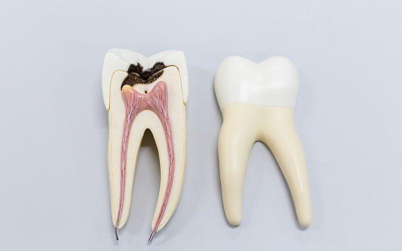 Devitalizzazione del dente: quando serve e come viene effettuata