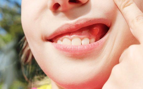 Come si riconosce e si cura l'ascesso dentale?